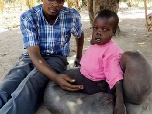 女婴患巨型兽皮痣 扒一扒那些史上最罕见的疾病案例