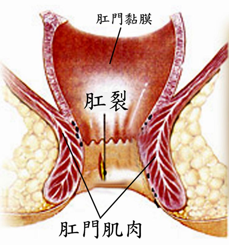 肾做瘘管手术步骤图解