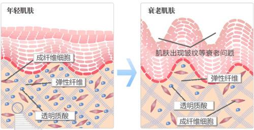 就是真皮层胶原蛋白流失的