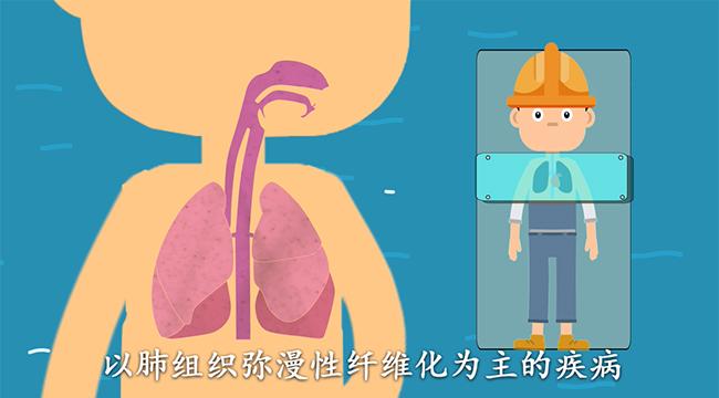 【MG動畫】如何防治塵肺病,就靠這8個字